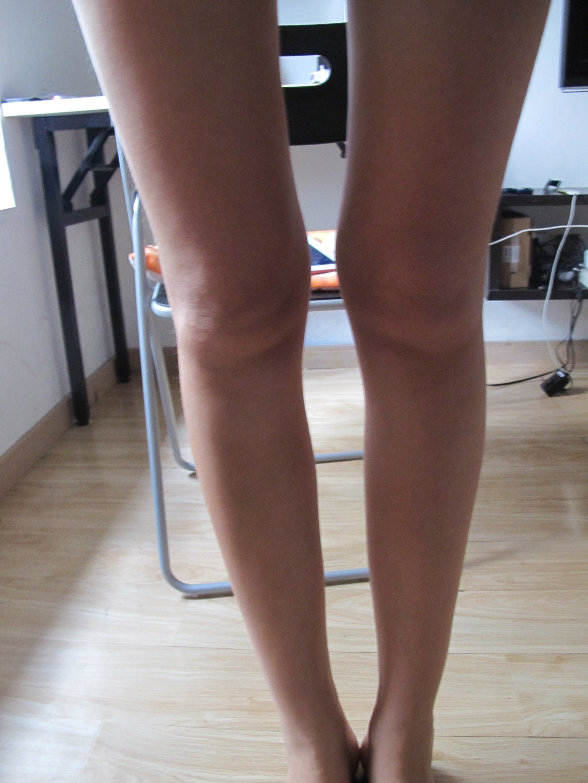 Натянутые колени фото